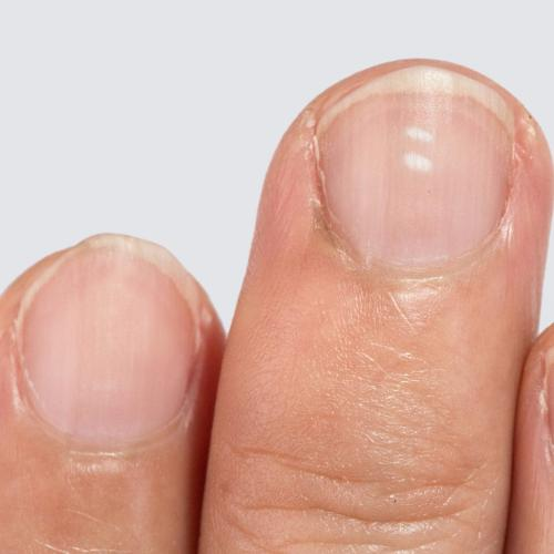 We Know What Little White Dots On Your Nails Really Mean