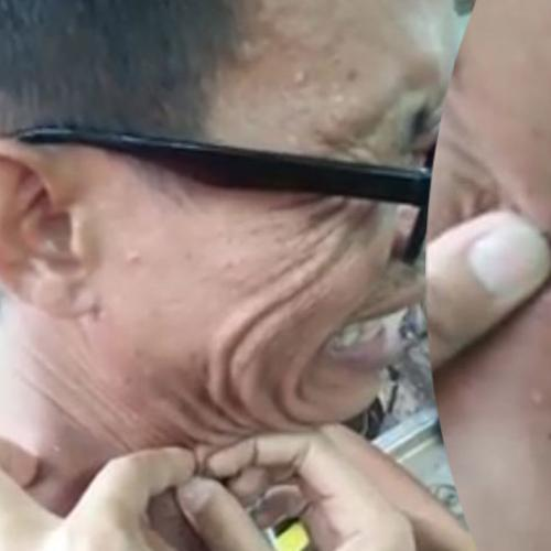 Man Squeezes 20 Year Old Blackhead From His Neck, We Spew