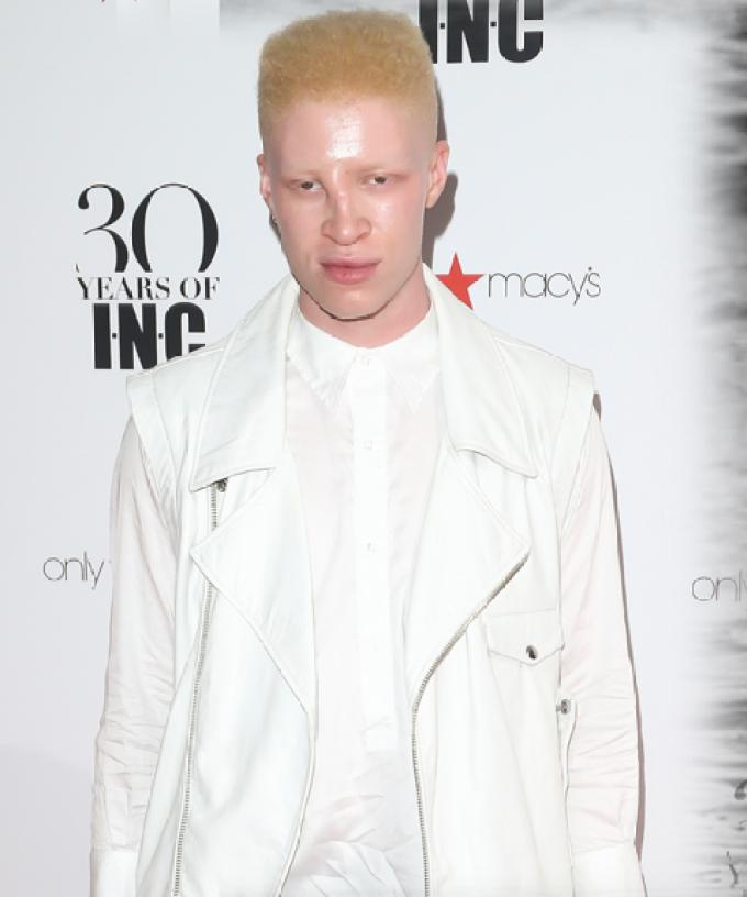 Albino Model Shaun Ross Shows Massive Penis in New Music Vid
