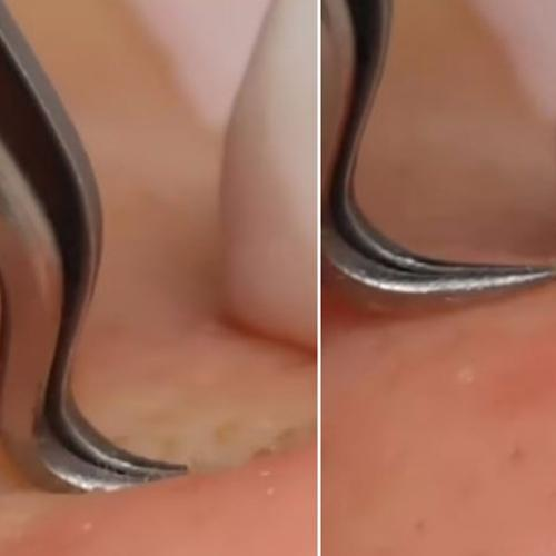This 'Pain Free Way' Of Removing Acne Is Weirdly Mesmerising