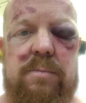Aussie Paramedic Bashed By Teenagers During Charity Bike Ride