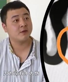 Man Finds Tooth Growing Inside His Nose After It Got Knocked Out 20 Years Ago